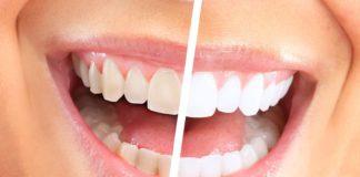 odontoiatra.it, sbiancamento domiciliare