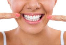 odontoiatra.it, bleaching, sbiancamento
