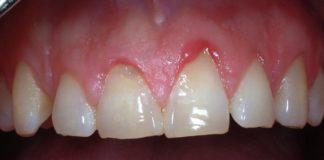 odontoiatra.it, terapia parodontale, malattia parodontale
