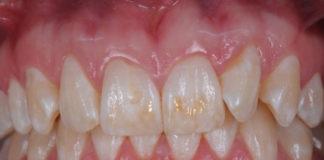 odontoiatra.it, demineralizzazione, erosione dentale
