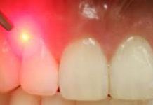 odontoiatra.it, sbiancamento, parodontopatie