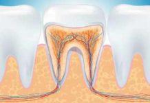 odontoiatra.it, endodonzia