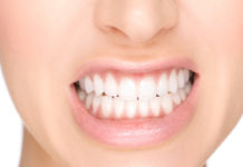odontoiatra.it, bruxismo