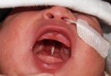 odontoiatra.it, carie secondaria, carie, malformazioni cranio-facciali