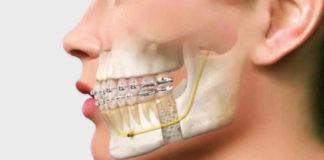 odontoiatra.it, osteotomia