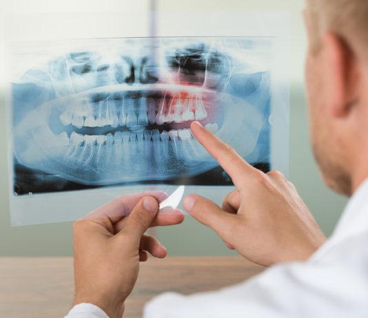 odontoiatra.it, malattia parodontale