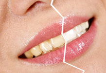 odontoiatra.it, sbiancamento, bleaching