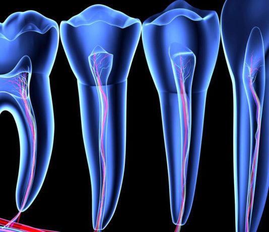 odontoiatra.it, endodonzia chirurgica