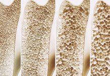 odontoiatra.it, osteoporosi