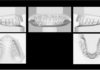 odontoiatra.it, overdenture, impianti dentali