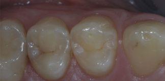 odontoiatra.it, carie, patologia cariosa