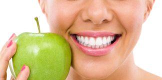 odontoiatra.it, sbiancamento dentale
