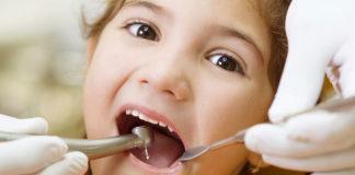 odontoiatra.it, carie, pedodonzia, patologia cariosa