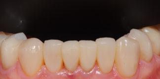 odontoiatra.it, erosione dentale