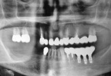 odontoiatra.it, preservazione della cresta