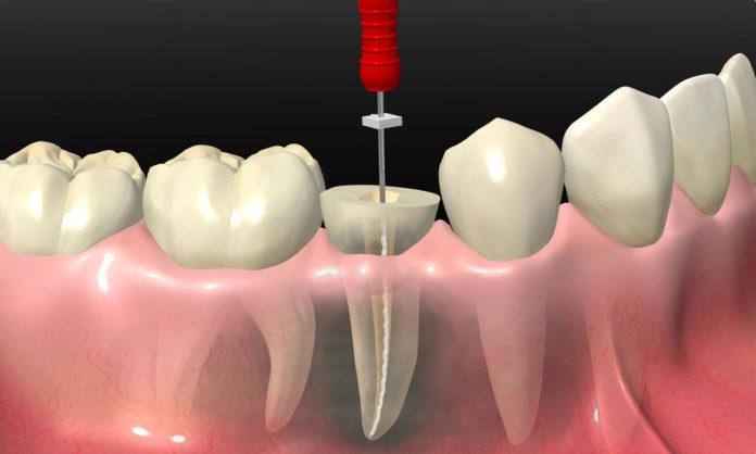 odontoiatra.it, endodonzia, denti decidui