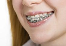odontoiatra.it, farmacologia, trattamento ortodontico, ortodonzia