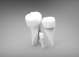odontoiatra.it, protesi, implantologia