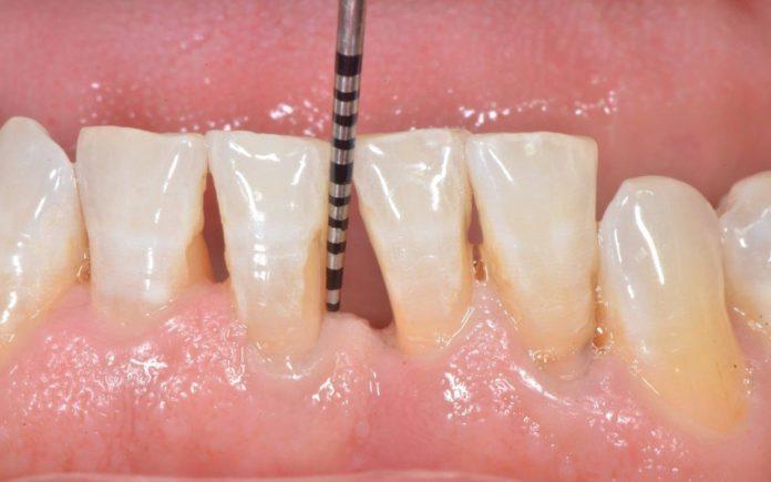 odontoiatra.it, parodontite, piorrea