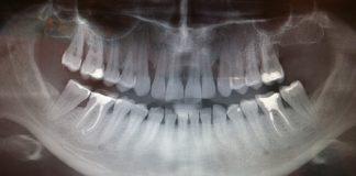 odontoiatra.it, chirurgia orale, estrazione