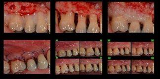 odontoiatra.it, rigenerazione parodontale
