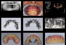 odontoiatra.it, chirurgia implantare