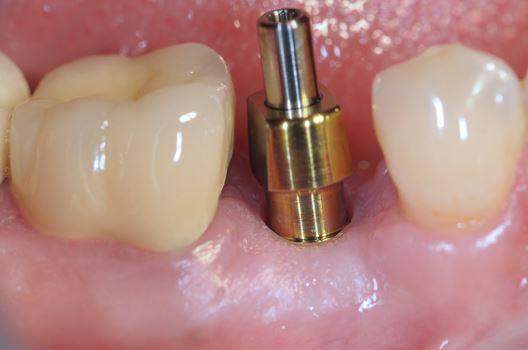 odontoiatra.it, chirurgia orale, implantologia