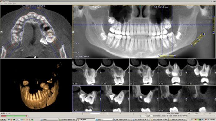 odontoiatra.it, tomografia volumetrica