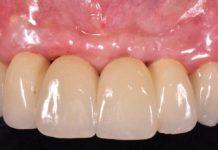 odontoiatra.it, rigenerazione ossea