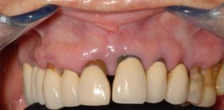 odontoiatra.it, parodontite