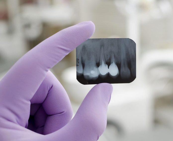 odontoiatra.it, endodonzia conservativa