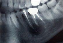 odontoiatra.it, cisti odontogena