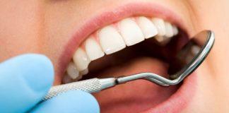 odontoiatra.it, igiene, sbiancamento