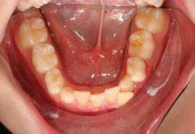 odontoiatra.it, iperplasia gengivale, farmaci