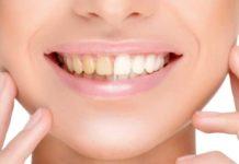 odontoiatra.it, igiene orale, sbiancamento