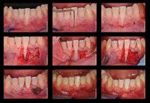 odontoiatra.it, recessione, terapia ortodontica