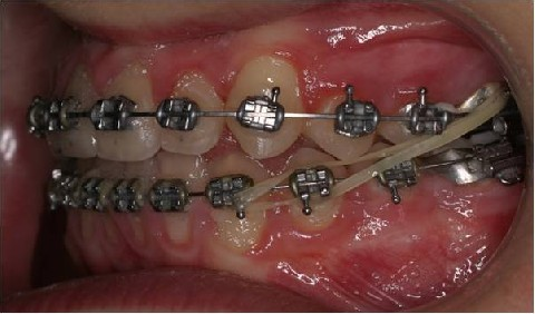 odontoiatra.it, elastici intermascellari. elastici di classe III