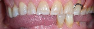 odontoiatra.it, protesi, protesi fissa, implantologia
