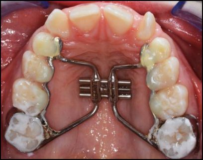 odontoiatra.it, ortodonzia moderna, deficit mascellari, deglutizione atipica, cross-bite
