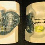odontoiatra.it, apparecchio ortognatodontico funzionale