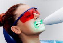 odontoiatra.it, sbiancamento