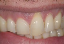 odontoiatra.it, parodontologia, malattia parodontale