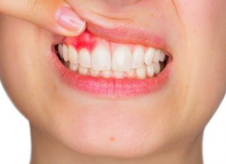odontoiatra.it, iperplasia gengivale, parodontite