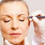 odontoiatra.it, lifting, odontoiatria estetica