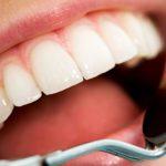 odontoiatra.it, odontoiatria conservativa
