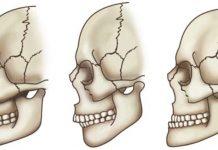 odontoiatra.it, malocclusione, atm