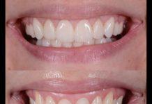 odontoiatra.it, implantologia, atrofia ossea