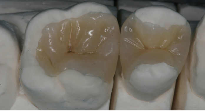 odontoiatra.it, odontoiatria restaurativa, conservativa diretta