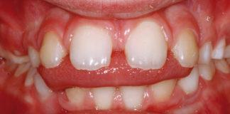 odontoiatra.it, malocclusioni, deglutizione atipica
