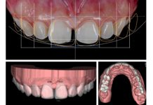 odontoiatra.it, odontoiatria moderna, virtual planning estetico, digital smile design, ADSD